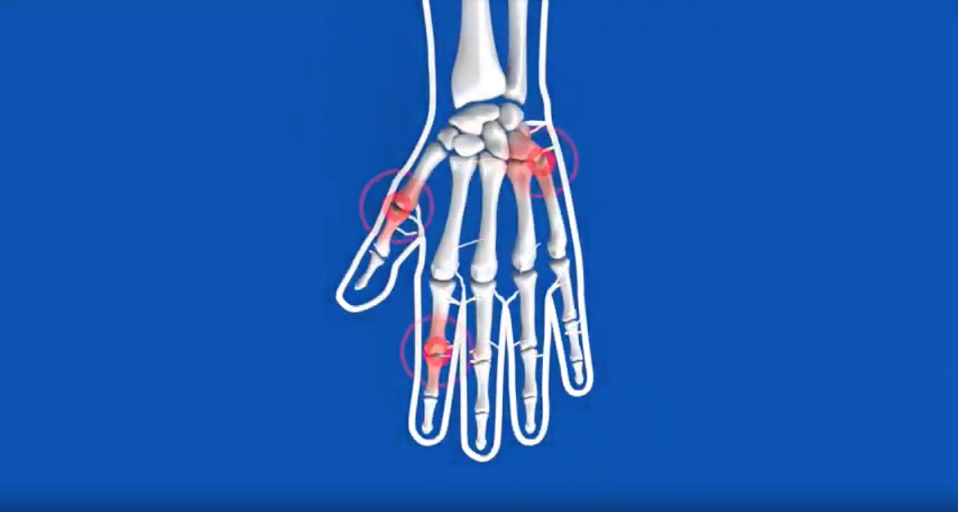 pain points in hand xray